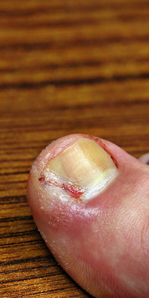 ingrown-toe-nails