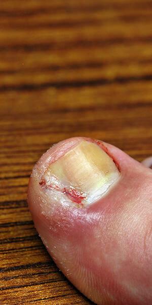 ingrown-toe-nails